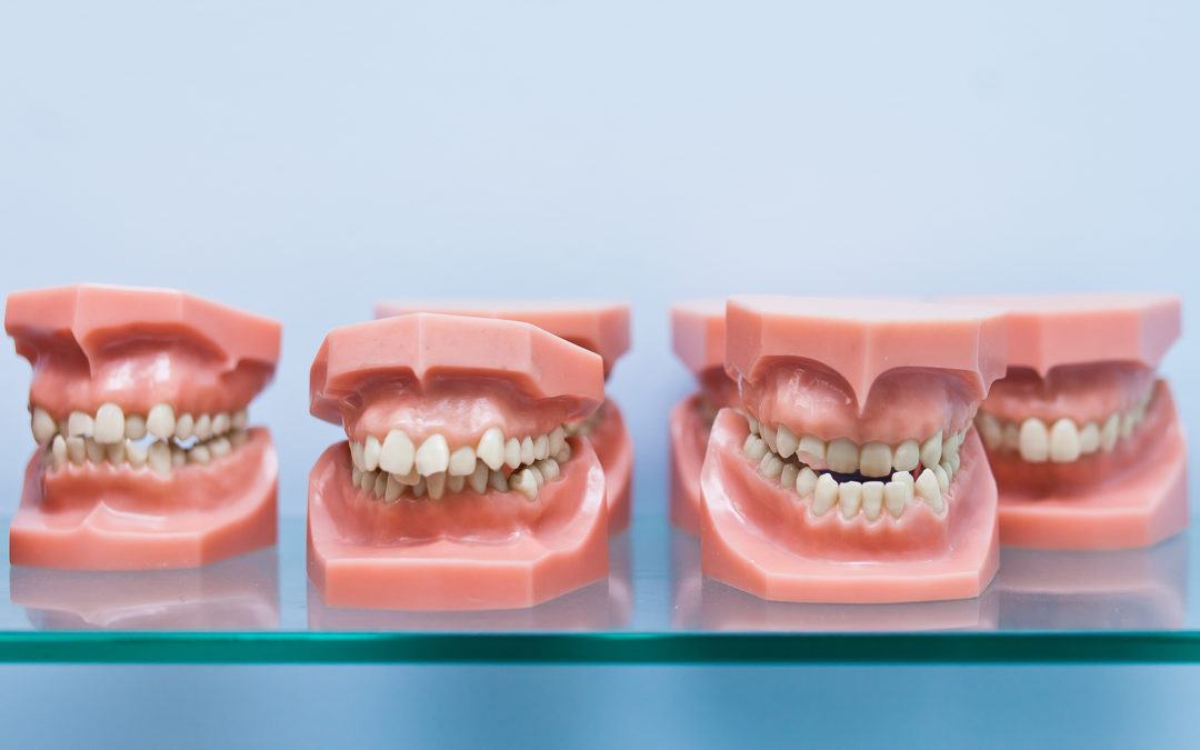 Four teeth models each show different overbites/teeth positions.