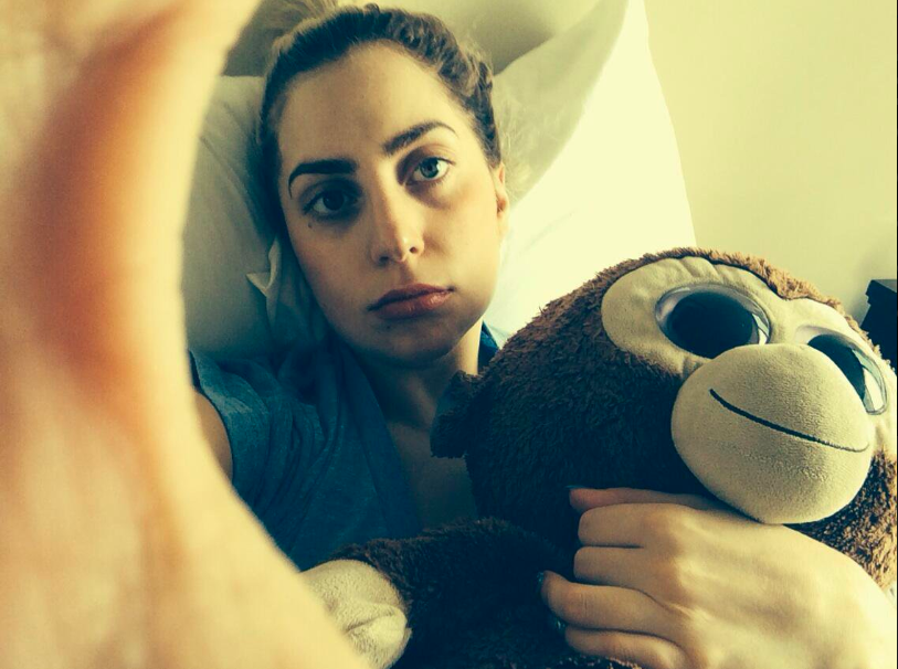 Lady Gaga shows off her chipmunk cheeks after having her wisdom teeth removed. She sits in bed and holds a stuffed monkey.