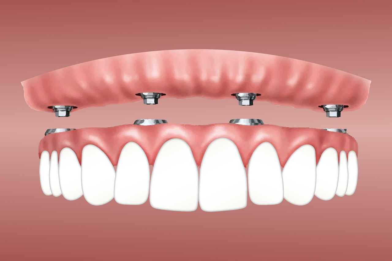 A graphic of how the overdenture implant connects to the jaw