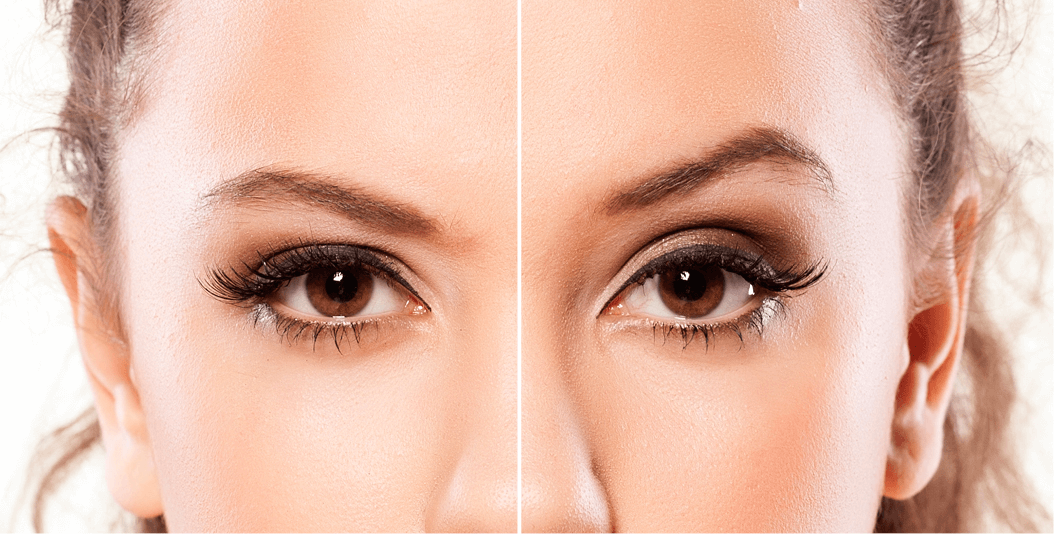 A woman wearing eyeshadow showing a before and after botox.