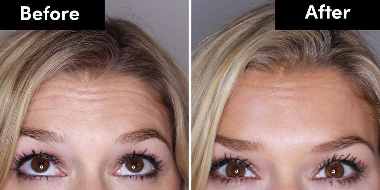 A before and after picture of a woman who received botox on her forehead.