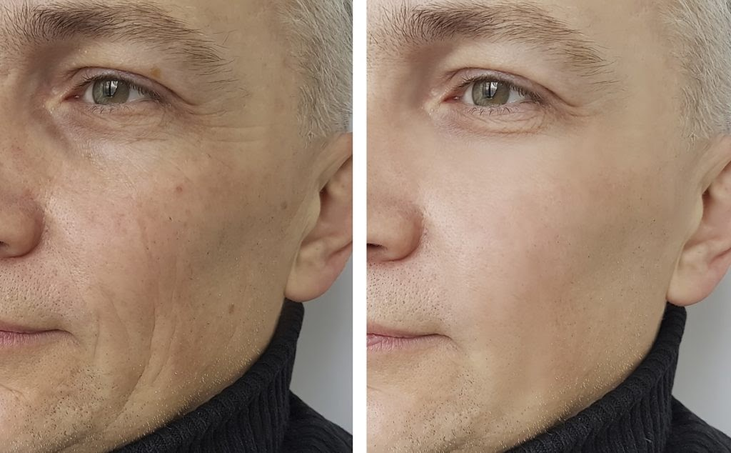 A before and after picture of an older man who received dermal fillers in his cheek.