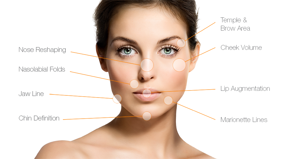 A diagram of a woman shows common places to receive dermal fillers.
