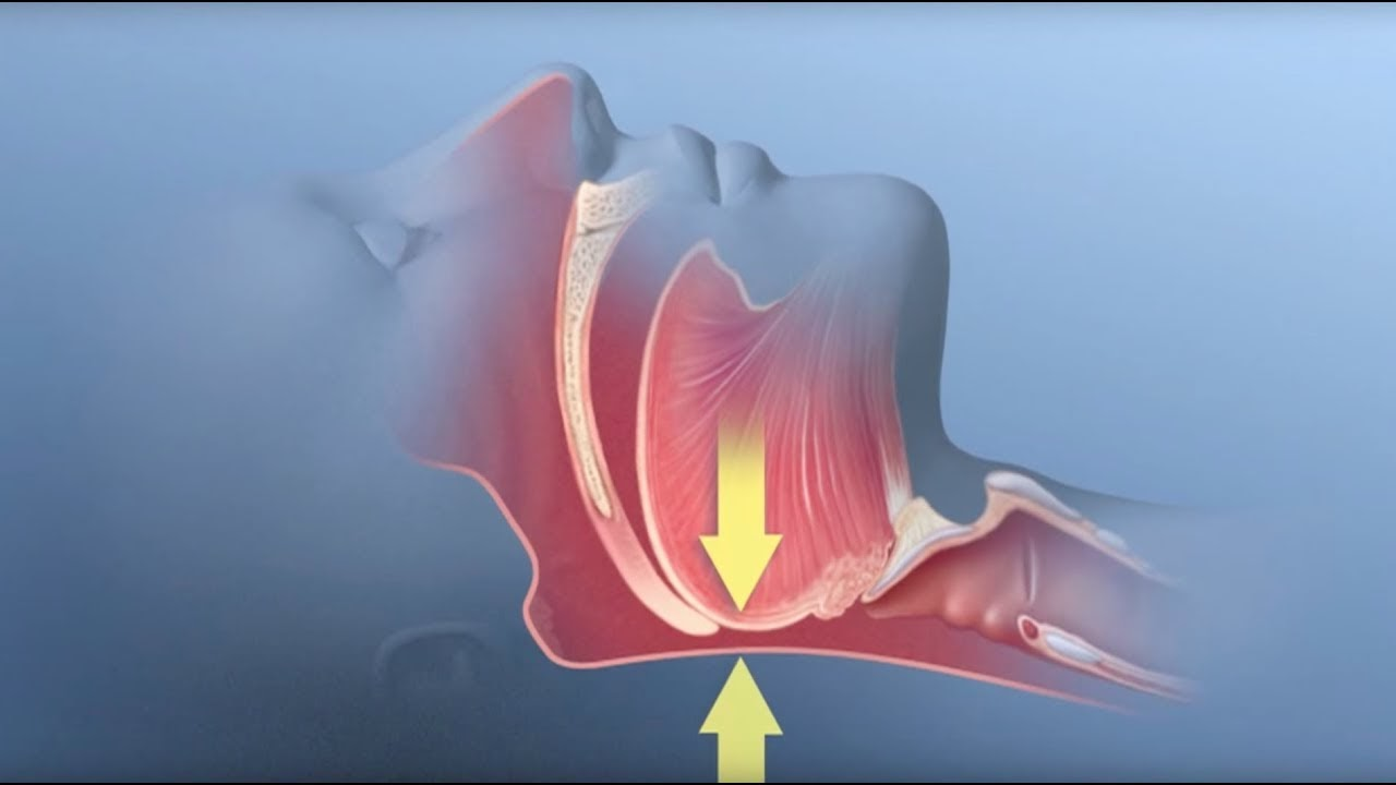 A blue and red diagram of a throat closing.