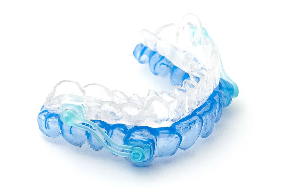 A blue and white plastic oral appliance for obstructive sleep apnea.