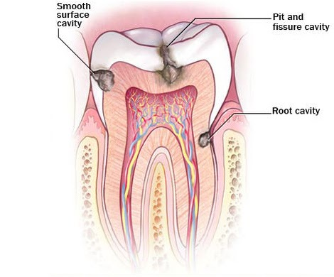 A diagram of a tooth's roots and different types of cavities.