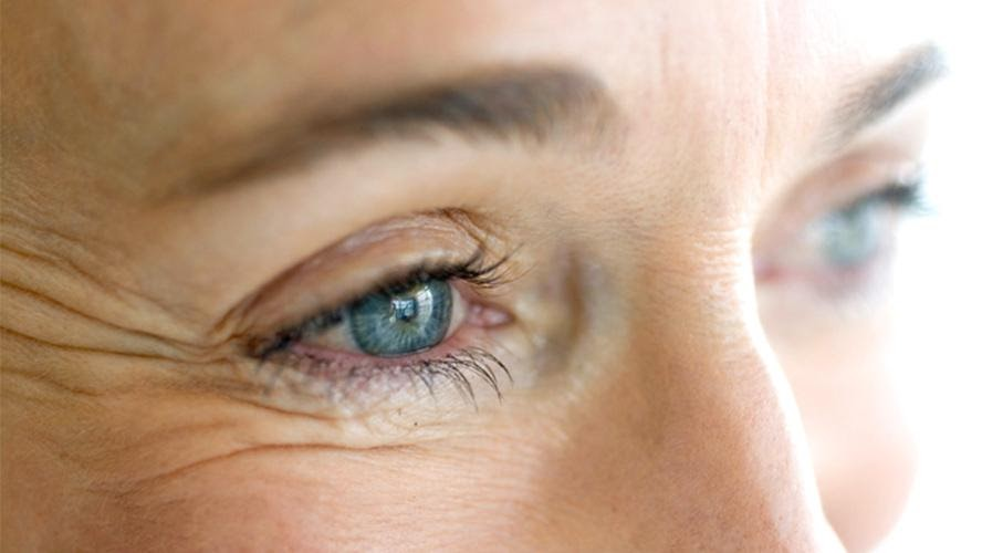 A woman's blue eyes are shown with crow's feet wrinkles.