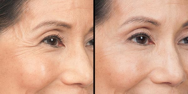 A before and after of a woman who received botox.