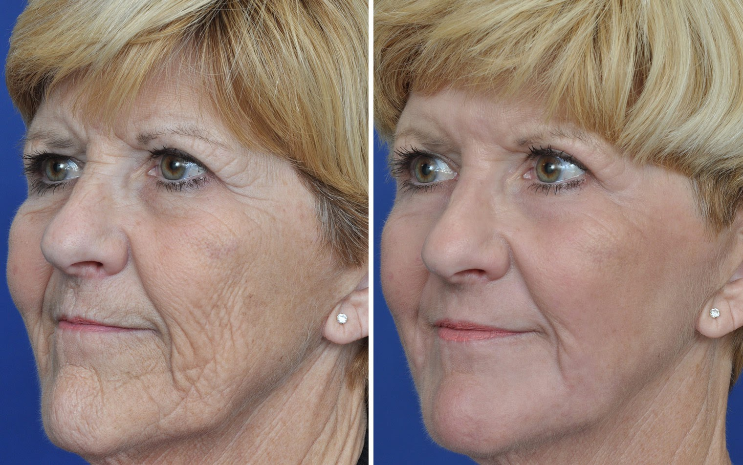 A before and after of an older lady who received laser resurfacing.
