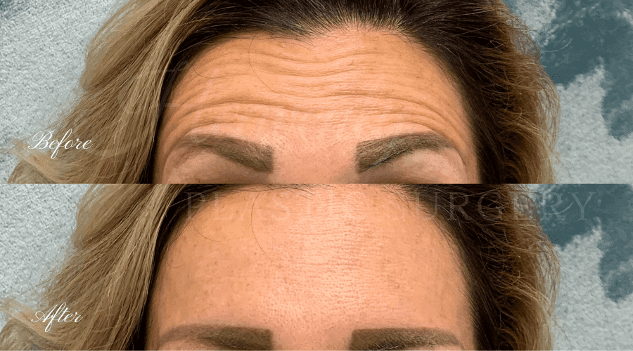 before and after photos of woman who received botox in her forehead