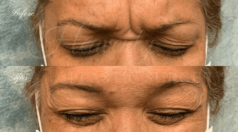 before and after images of a woman who received Botox in her forehead