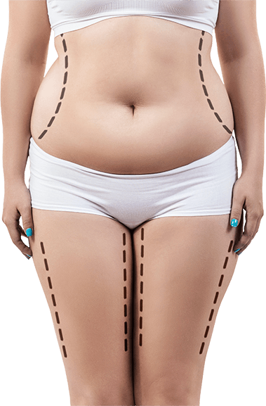 The Slim Sculpt Light fat reduction is the ideal treatment for all body types when combined with appropriate levels of exercise also, a healthy balanced diet and lifestyle.