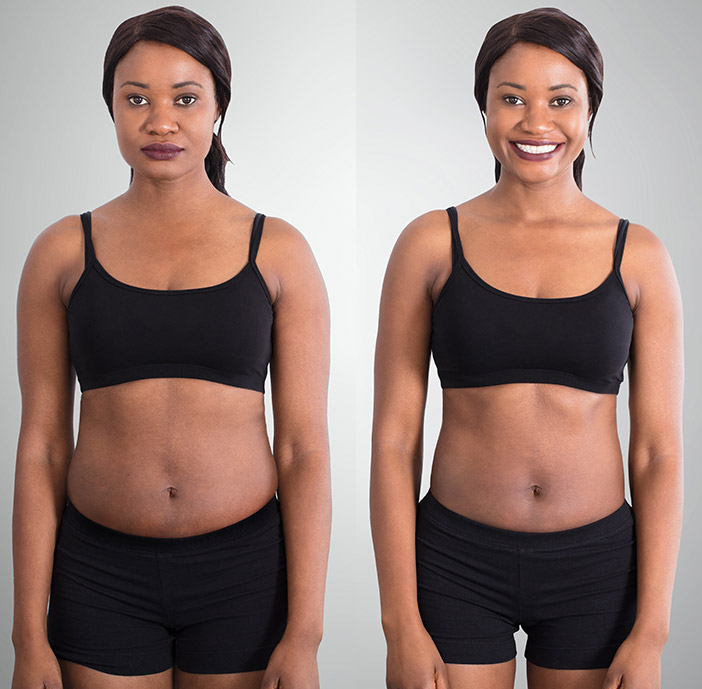 Slim Body Now, Body Contouring, Body Sculpting, Silver Spring MD