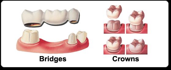 Bridges & Crowns
