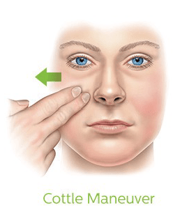 Cottle's Maneuver is a simple self-test to measure your nasal flow.