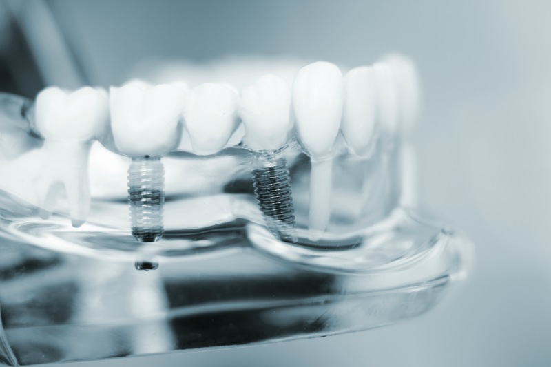 dental implants at Smileplicity Dentistry