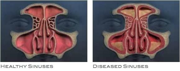 Healthy vs Diseased Sinuses