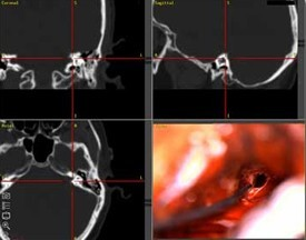 Image-guided surgery can help ENT surgeons create a plan for your surgery.