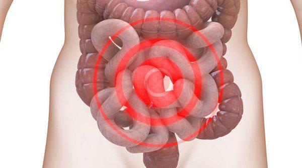 Chẩn đoán hội chứng ruột kích thích | Vinmec