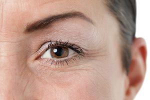 Nguyên nhân nếp nhăn vùng mắt xuất hiện