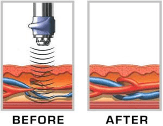 How Treatment for ED using Low Intensity Shock Wave Therapy works