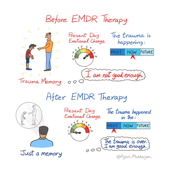 EMDR Therapy for Trauma Recovery