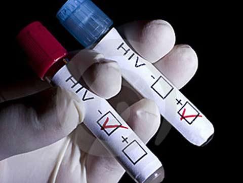 xet-nghiem-hiv-o-dau