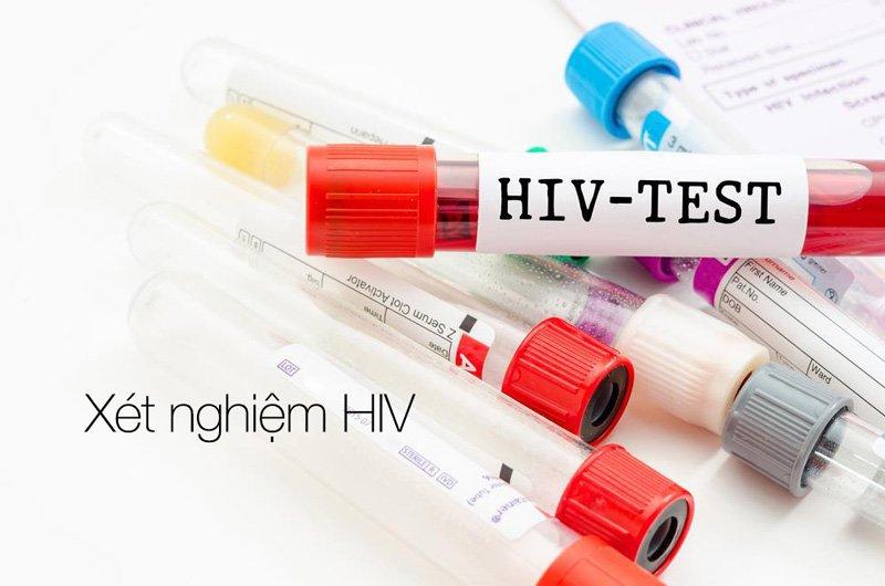 vicare.vn-xet-nghiem-hiv-bao-nhieu-tien-body-1