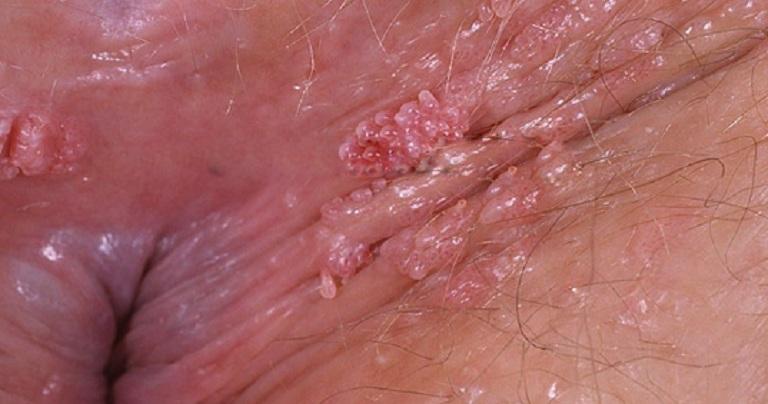 Hình ảnh bệnh sùi mào gà giai đoạn đầu ở nữ