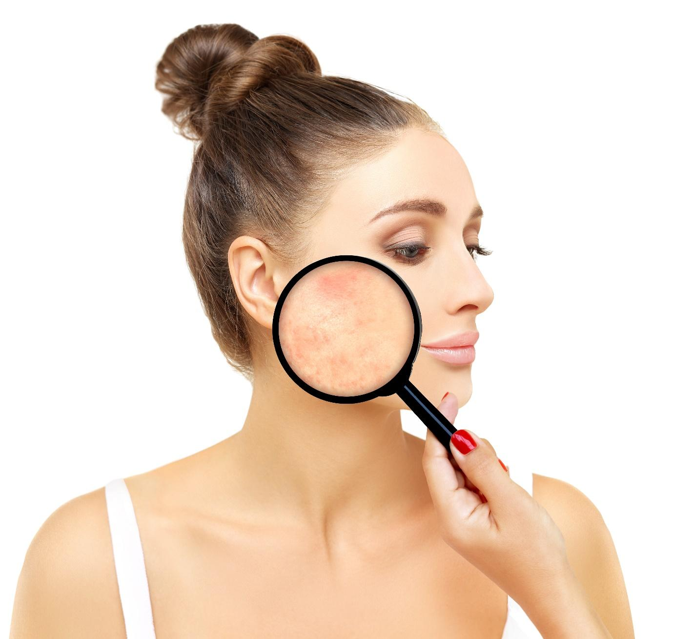 חשוב להתאים את טיפול הפנים לסוג העור שלך