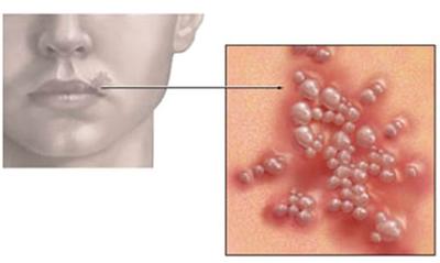 HIV-va-nhung-bieu-hien-thuong-gap-3