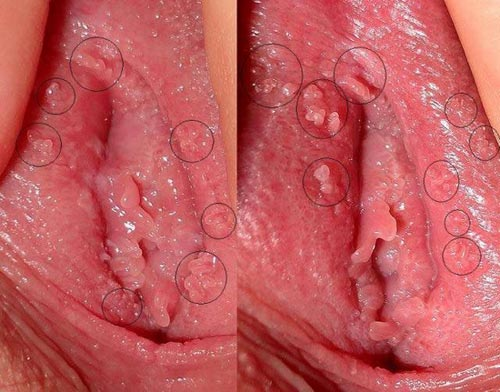 Triệu chứng bệnh sùi mào gà ở nữ giới