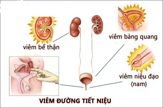 Triệu chứng viêm đường tiết niệu nam