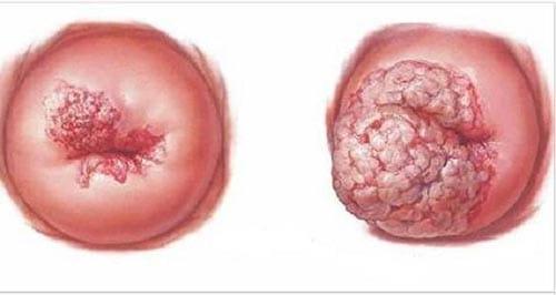 Ung thư tử cung