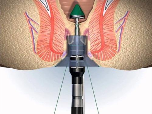 Chi phí phẫu thuật cắt trĩ