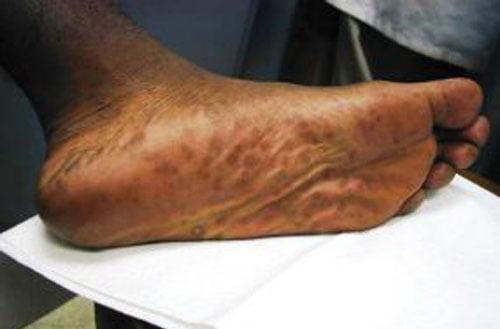 Hình ảnh bệnh giang mai ở chân