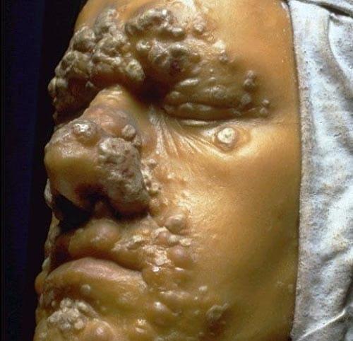 Hình ảnh bệnh giang mai