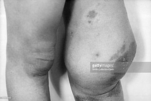 Hình ảnh biến chứng của bệnh giang mai