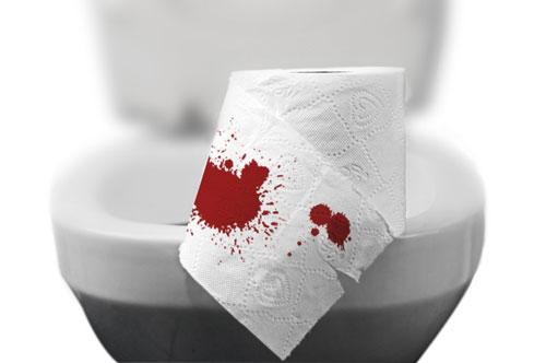 Đi cầu ra máu khám ở đâu
