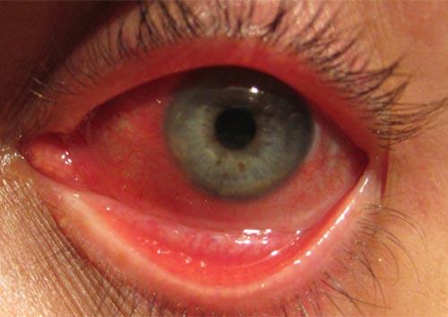 Hình ảnh bệnh lậu ở mắt