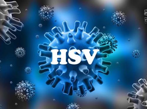 Virus hsv là gì