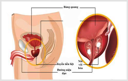 Cách điều trị vôi hóa tuyến tiền liệt