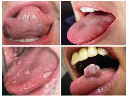Hình ảnh bệnh sùi mào gà ở lưỡi