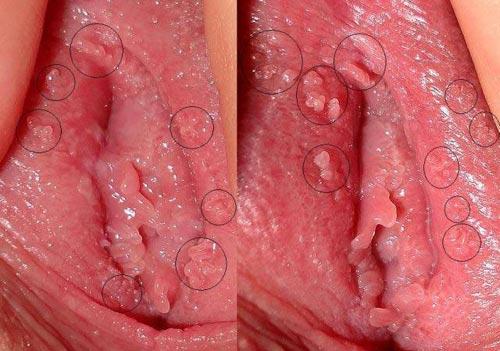 Hình ảnh mụn gai sinh dục nữ