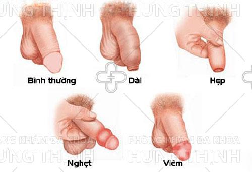 Các bệnh bao quy đầu thường gặp