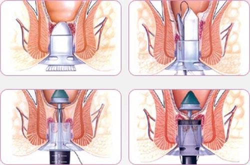 Cách chữa bệnh trĩ nội