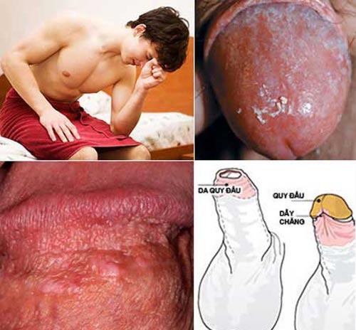 Hình ảnh về bệnh viêm bao quy đầu