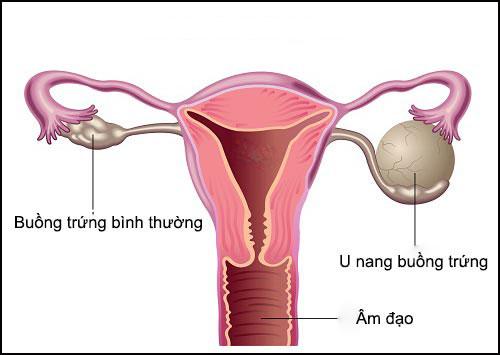 Bị u nang buồng trứng liệu có mang thai được hay không?