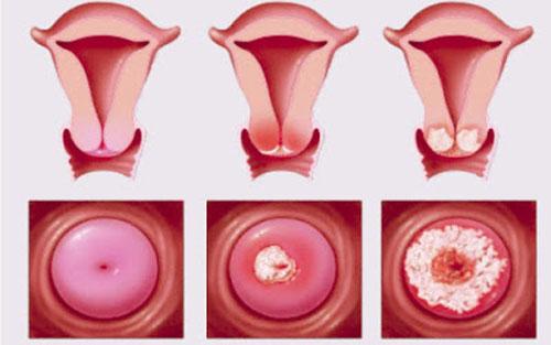Hình ảnh ung thư cổ tử cung