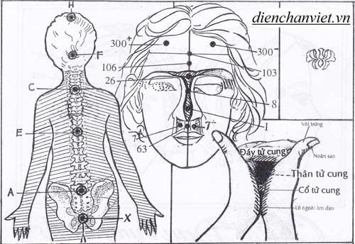 Chữa viêm lộ tuyến cổ tử cung bằng diện chẩn